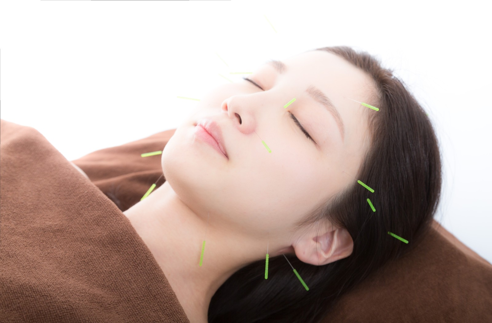 「美容鍼 フリー素材」の画像検索結果